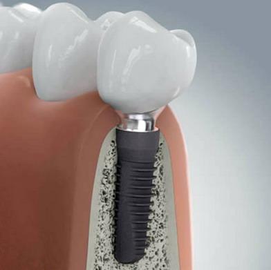 Implantuotas dantis