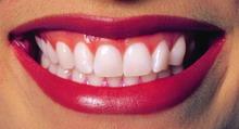 Gražūs dantys ir jų priežiūra